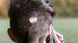 como curar la alopecia areata
